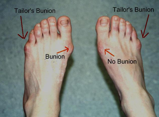 Bunions How to Treat Without Resorting to Bunion Surgery