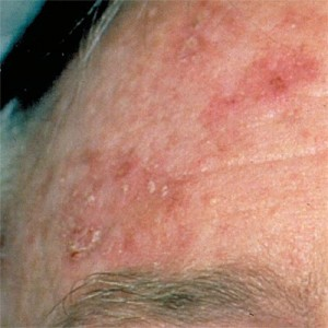Photos of Actinic Keratosis
