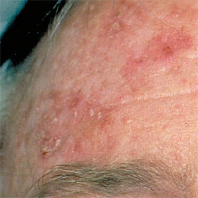 Actinic Keratosis Pictures Causes Symptoms And Treatment