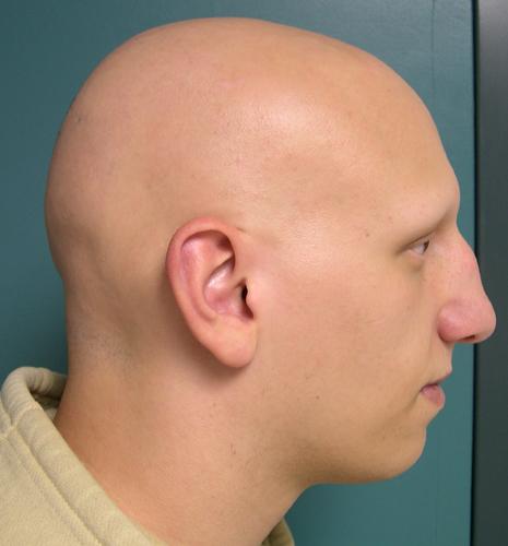 picture 2 alope... Alopecia Areata Totalis