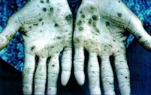 Arsenic Poisoning Picture