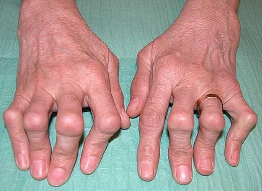 от чего ревматоидный артрит
