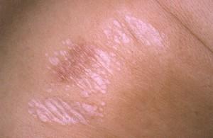 Image of Lichen sclerosus