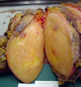 Picture of Liposarcoma