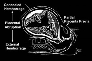 Image of Placental Abruption