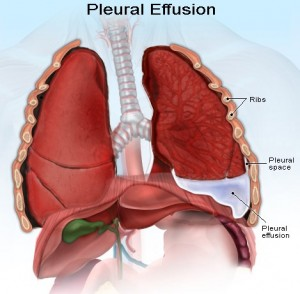 Image of Pleural effusion
