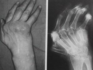 Image of Polyarthritis