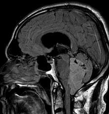 Picture of Ependymoma