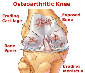 Image of Osteoarthritis