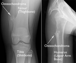 Image of Osteochondroma