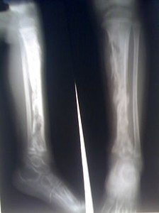 Picture of Osteomyelitis