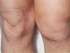 Picture of Reactive arthritis