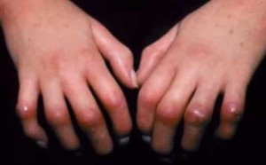 Image of Scleroderma