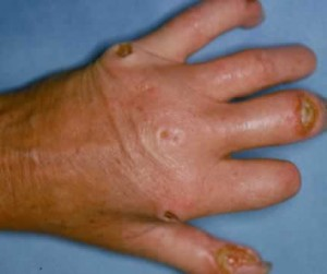 Picture of Scleroderma