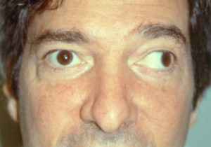 Image of Strabismus