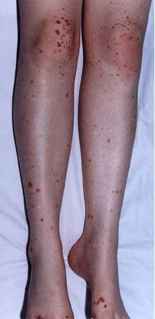 Image of Vasculitis