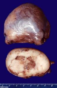 Image of Seminoma