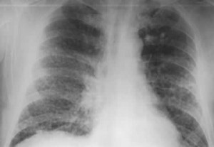 Picture of Silicosis