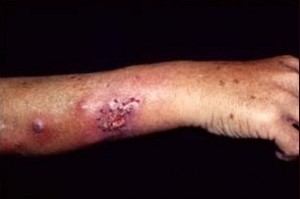 Image of Sporotrichosis