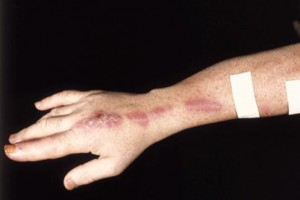 Picture of Sporotrichosis
