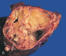 Picture of Teratoma