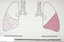 Image of Bronchopneumonia