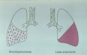 Picture of Bronchopneumonia