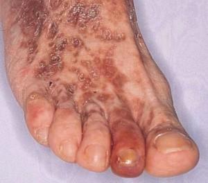 Cryoglobulinemia Image