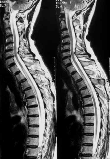 Picture of Transverse myelitis