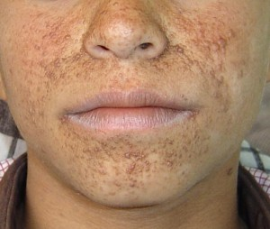 Picture of Tuberous sclerosis