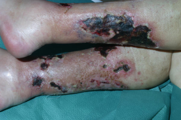 calciphylaxis causes symptoms diagnosis treatment and