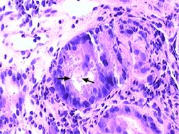 Image of Cryptosporidiosis of the colon