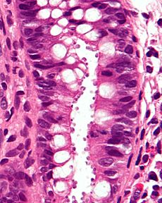 Picture of Cryptosporidium