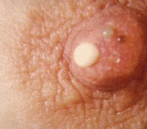 Picture of Galactorrhea