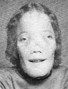 Picture of Craniodiaphyseal dysplasia