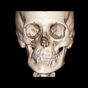 Parry Romberg syndrome CT reconstruction bone