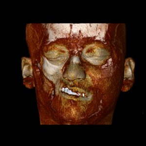 Parry Romberg syndrome CT reconstruction, soft tissues