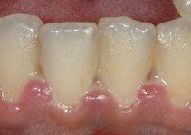 Trench Mouth - Ulcerative necrotizing gingivitis