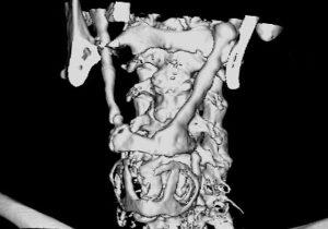 [3] Verknoechertes Lig stylohyoideum - CT 3D - Eagle syndrome