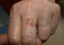 Bowen disease in 81-year-old-woman.