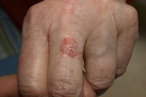 Bowen disease in 81-year-old-woman.