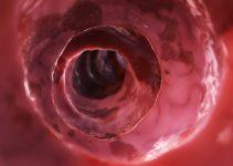 Inside of an unhealthy colon