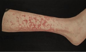 Erythema Marginatum picture on leg
