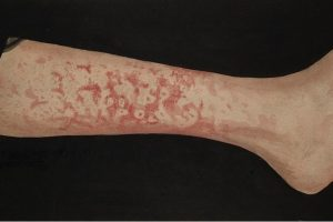 Erythema Marginatum on leg