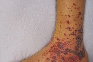 Petechiae on the low limb