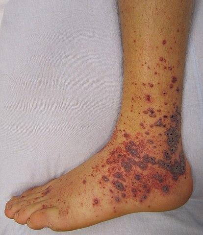 Petechiae | Pictures, Characteristics, Causes, Symptoms, Diagnosis & Treatments