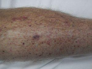 Petechia of the lower leg