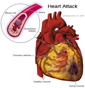 Massive Heart Attack anatomy