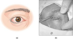 Trichiasis Ingrown Eyelash