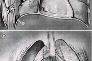 tracheal deviation Image